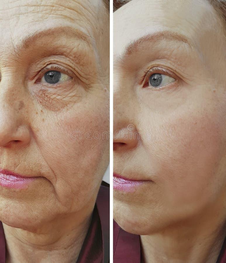 Äldre kvinnaframsida för skrynklor som före och efter hydratiserar kosmetiska tillvägagångssätt för korrigering, terapi som anti- arkivfoton