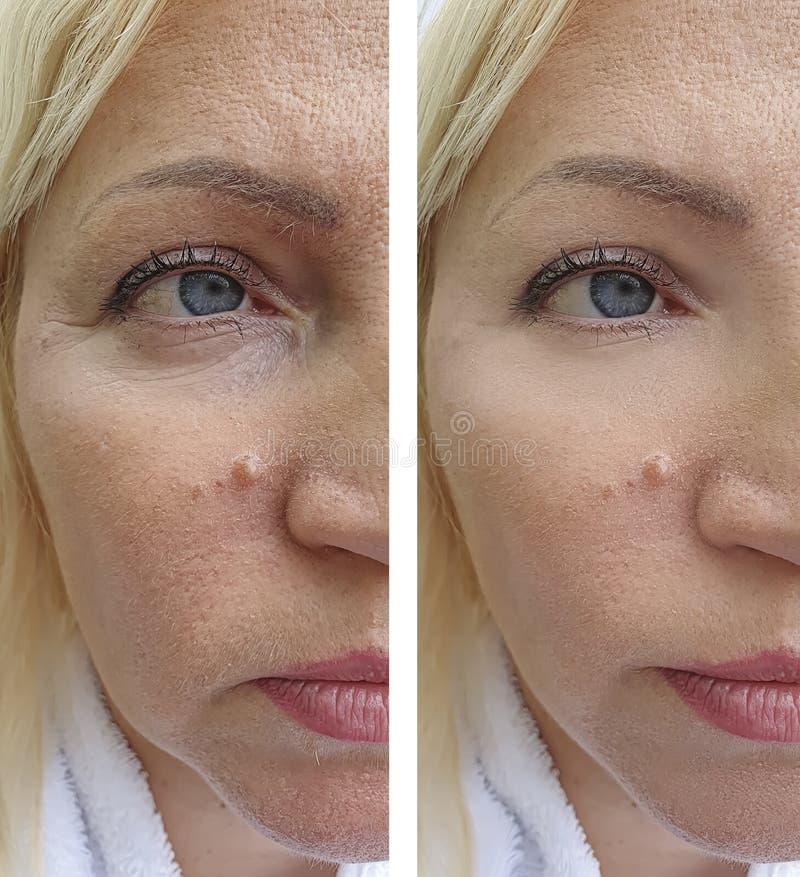 Äldre kvinnans framsida rynkar lyftande tillvägagångssätt för regenereringbehandlingterapi före och efter arkivfoto