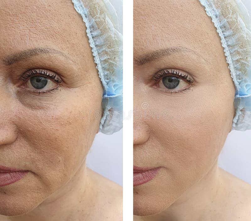 Äldre kvinnans framsida rynkar lyftande tillvägagångssätt för terapi för dermatologiregenereringbehandling före och efter royaltyfria foton