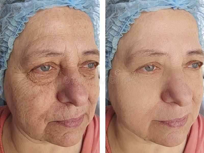 Äldre kvinnans framsida rynkar tillvägagångssätt för regenereringbehandlingterapi före och efter royaltyfri bild