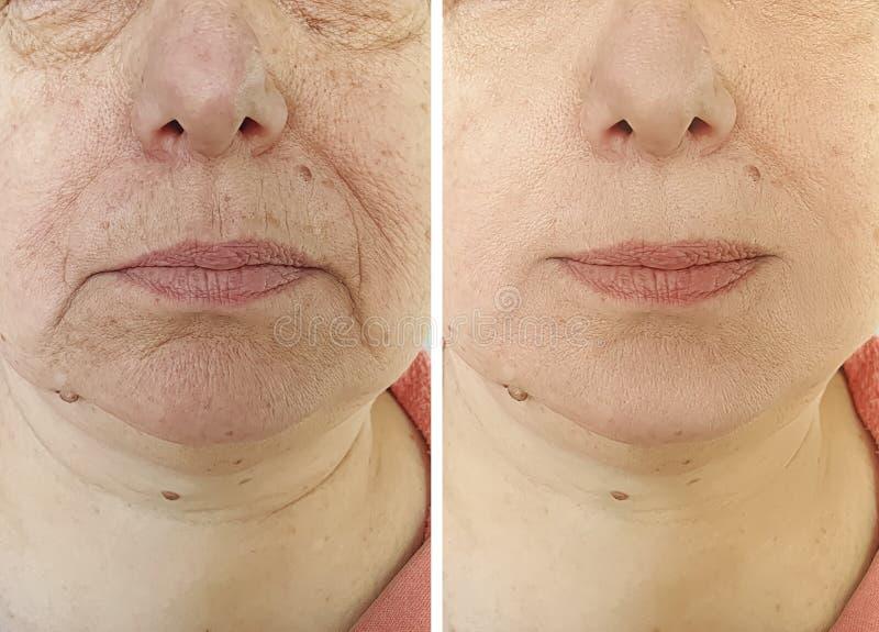 Äldre kvinnans framsida rynkar tillvägagångssätt för terapi före och efter royaltyfri fotografi