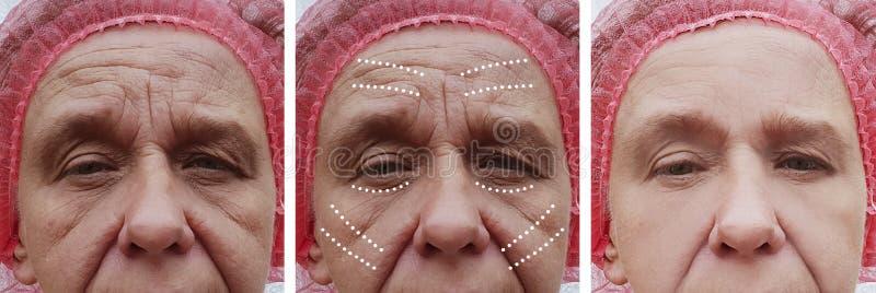 Äldre kvinnans skrynklor vänder mot före och efter problemcorrectiontillvägagångssätt arkivbild