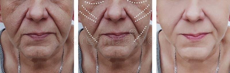 Äldre kvinnans skrynklor vänder mot problemcorrectiontillvägagångssätt för korrigering före och efter fotografering för bildbyråer