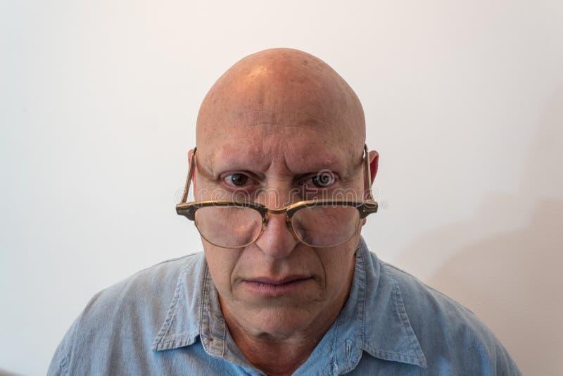 Äldre man som ser över horn rimmed exponeringsglas som är skalliga, alopeci, kemoterapi, cancer, på vit arkivbild