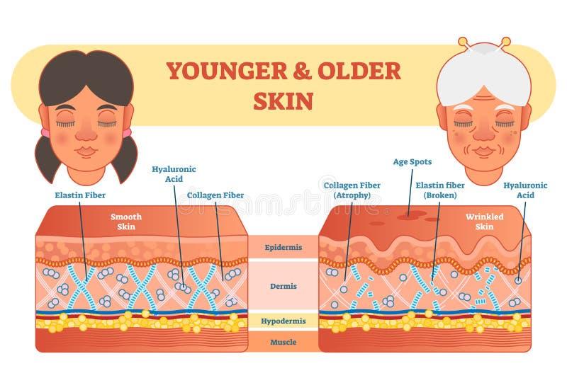 Äldre och mer ung hudjämförelsediagram, vektorillustrationintrig stock illustrationer