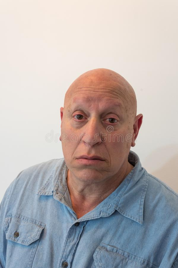 Älterer Mann, der die Kamera, kahl, Alopezie, Chemotherapie, Krebs, lokalisiert auf Weiß betrachtet stockbild