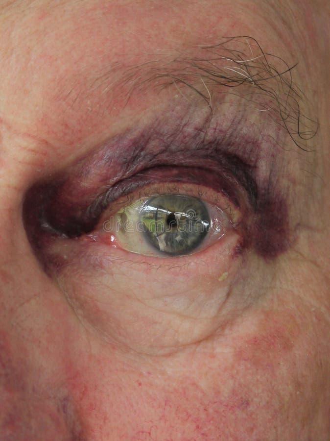 Älterer Mann: Gequetschtes Blaues Auge Stockfotos