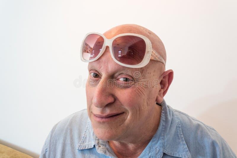 Älterer Mann mit der Sonnenbrille der Weinlesefrauen, kahl, Alopezie, Chemotherapie, Krebs, auf Weiß stockbild