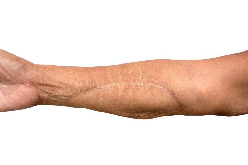 Ärr på armen efter operation som isoleras på vit bakgrund royaltyfri fotografi