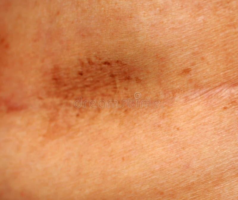 Ärr på bröstet efter kirurgi Brun fläck royaltyfria foton