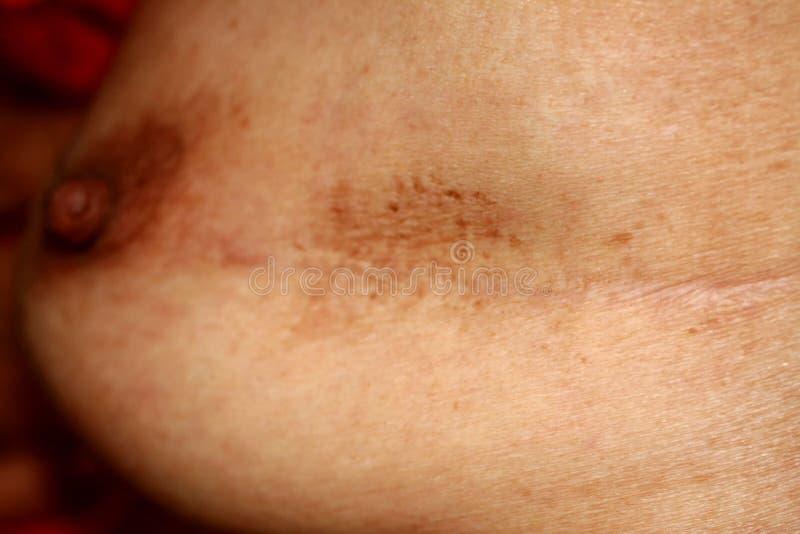 Ärr på bröstet efter kirurgi Brun fläck arkivbild