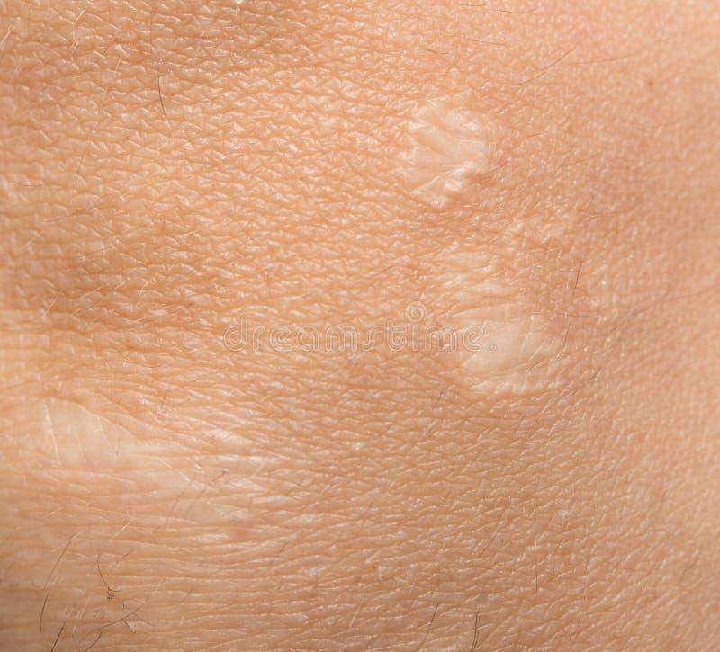 Ärr på den mänskliga huden arkivfoto
