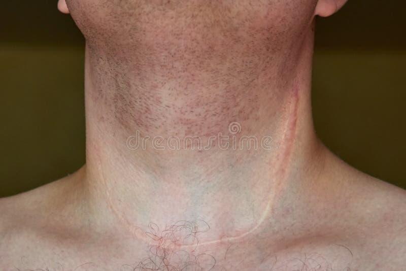 Ärr på halsen av en man efter borttagning av sköldkörteln royaltyfria foton