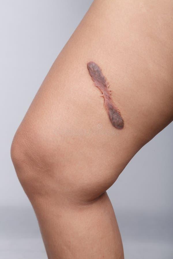 Ärr på mänsklig hud royaltyfri fotografi