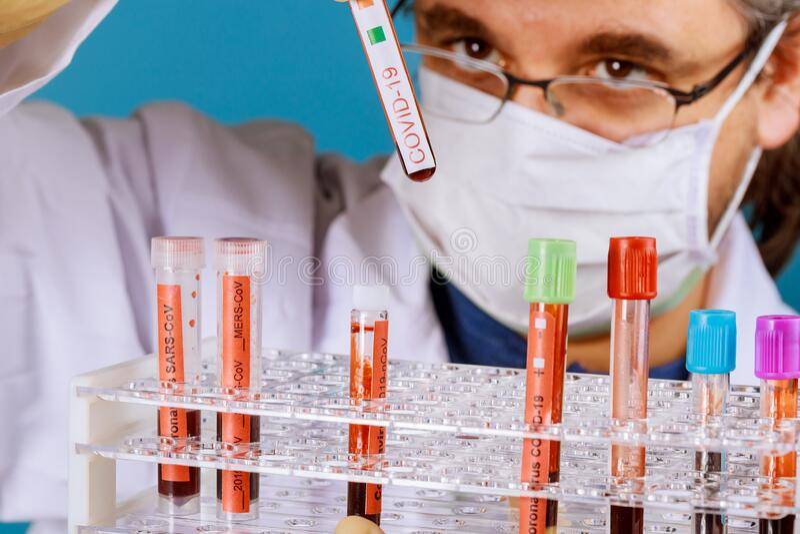 Ärzte hält Blutproben in den Händen CORONAVIRUS COVID-19 Corona Virus ist weltweit lizenzfreies stockfoto