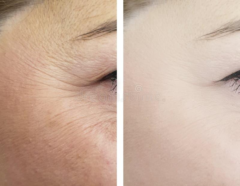 变老и的女性眼睛皱痕在撤除前和在推力作用区别更正做法以后 免版税库存照片