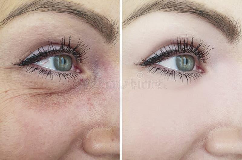 变老在推力作用区别更正做法以后的圆鼓的撤除前的女性眼睛皱痕 库存照片