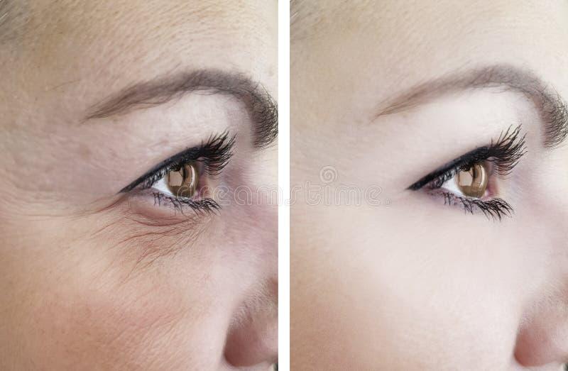 女性眼睛在推力作用区别更正做法以后的疗法圆鼓的撤除前起皱纹老化 库存照片