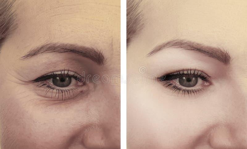 女性眼睛起皱纹在推力作用区别更正做法以后的变老的疗法圆鼓的撤除 免版税库存图片