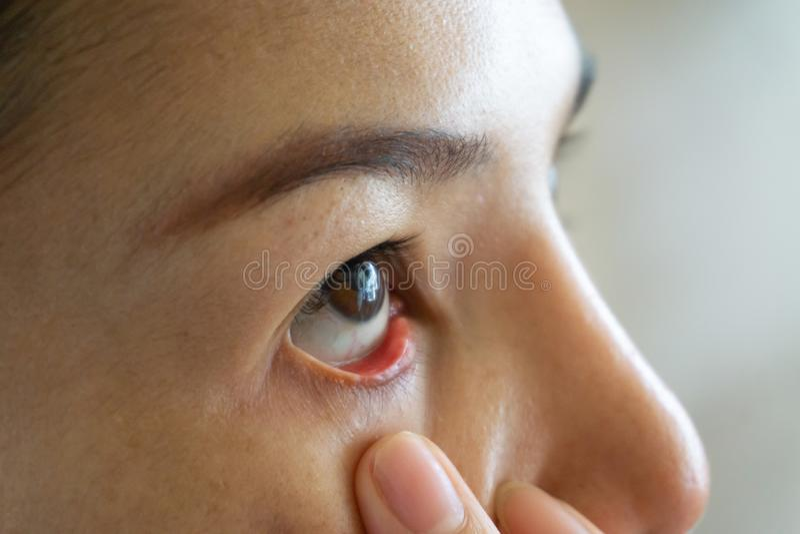 妇女红色眼睛干燥关闭,疲劳,血管的结膜炎问题 医学医疗保健血液血丝过敏眼睛 免版税库存照片