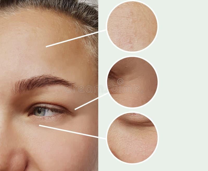 妇女眼睛前后起皱纹bloatin皮层效应结果区别更正疗法概念对比 免版税图库摄影