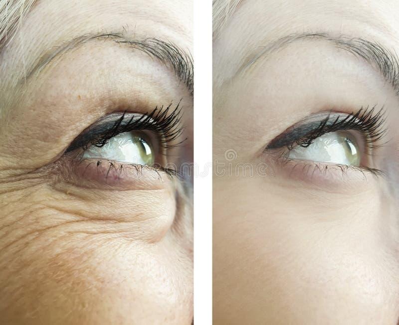 妇女的皱痕的眼睛,以前在做法回复做法治疗效果以后 库存图片