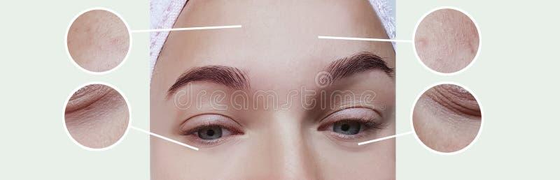 妇女膨胀作用区别更正疗法概念对比的眼睛皱痕在拼贴画前后 图库摄影