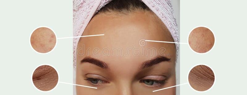 妇女膨胀作用更正疗法概念对比的眼睛皱痕在拼贴画前后 库存照片