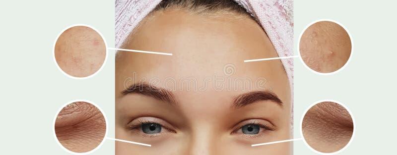 妇女膨胀皮肤学更正疗法概念对比的眼睛皱痕在拼贴画前后 免版税库存照片
