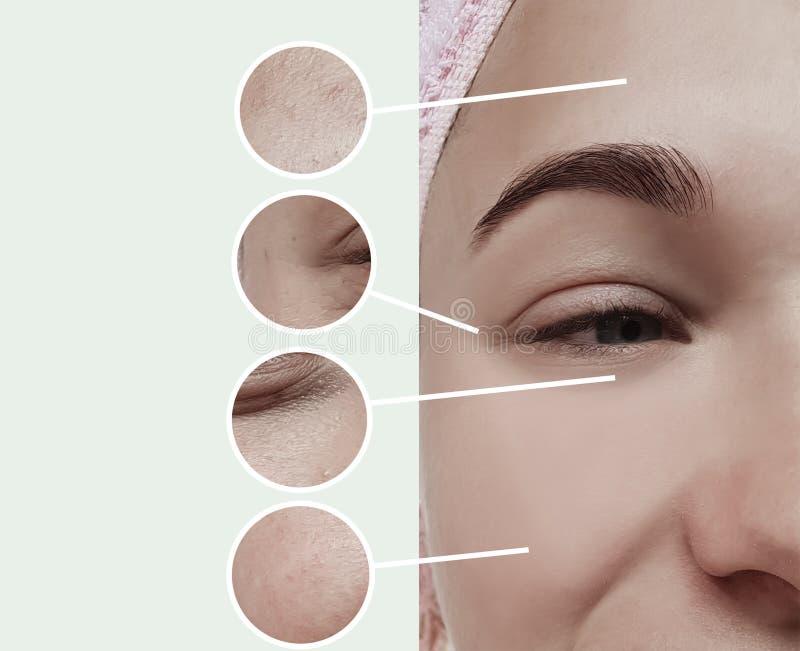 妇女膨胀皮肤学疗法概念对比的眼睛皱痕在拼贴画前后 免版税图库摄影