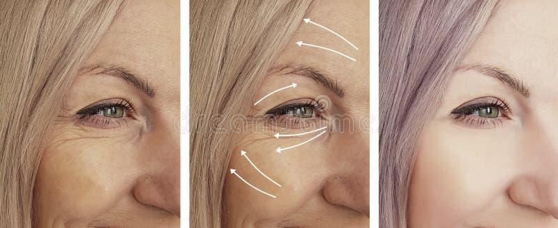 妇女面孔在回复健康箭头成熟举的疗法区别n以后以前起皱纹 免版税库存图片