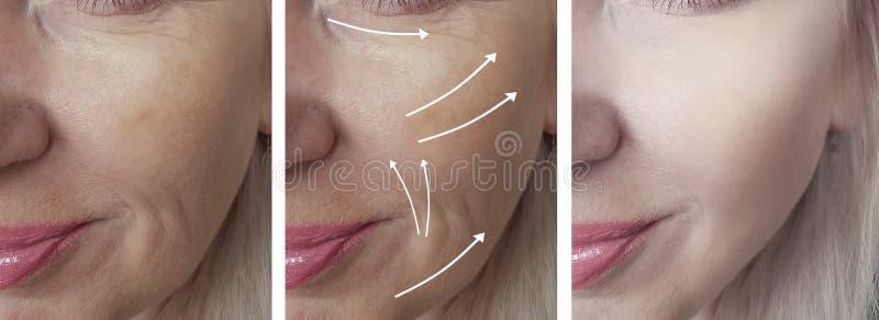妇女面孔在皮肤学回复健康箭头成熟举的疗法区别n以后以前起皱纹 免版税库存照片