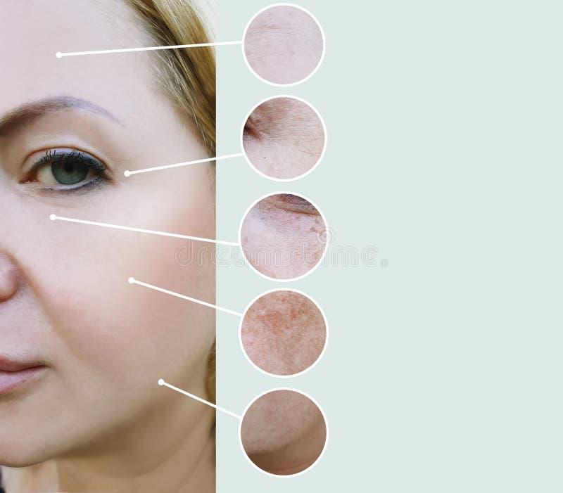 Żeńscy zmarszczenia przed i po różnicą dorośleć odzyskiwania beautician terapii procedur kolaż obraz stock