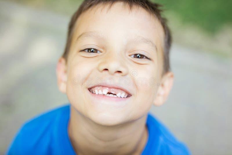 微笑和显示他改变的乳齿的年轻男孩 库存照片