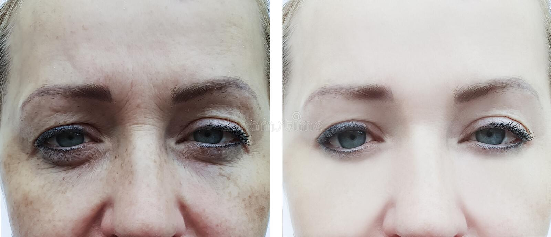 在做法,通胀前后的女性眼睛皱痕 免版税库存图片