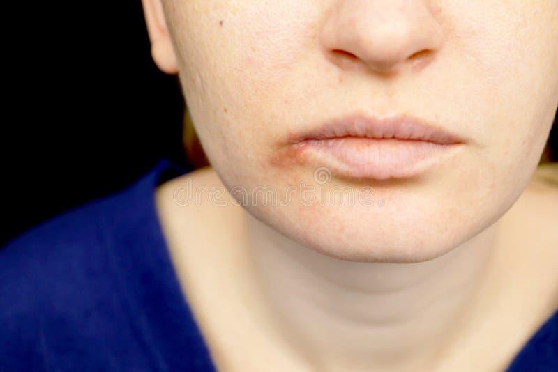 在嘴唇的疱疹:有寒冷和疱疹病毒的一名妇女由皮肤病学家和传染病专家审查 库存照片