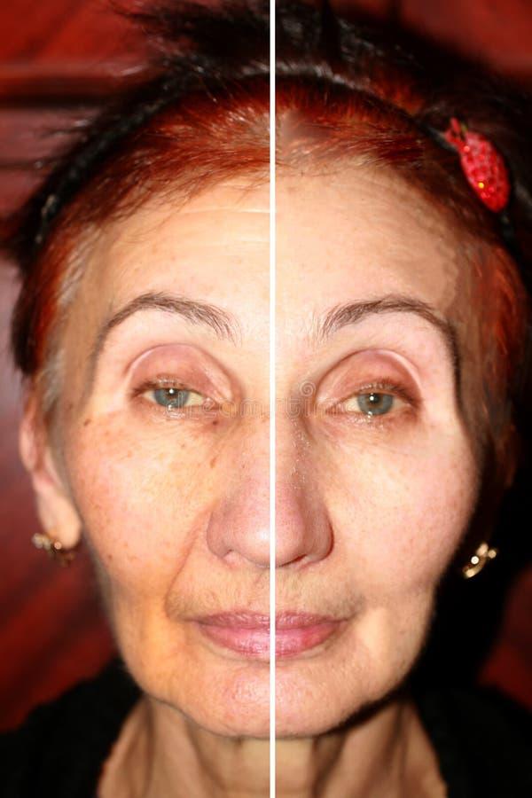 在面孔的染色 褐斑病和皱痕在面孔的皮肤 鼻唇的折叠 面孔一半的是 免版税库存照片