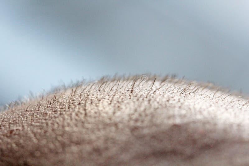 在顶头关闭的短发 头皮人的头 光秃 秃头人 头发成长的问题在头 库存图片