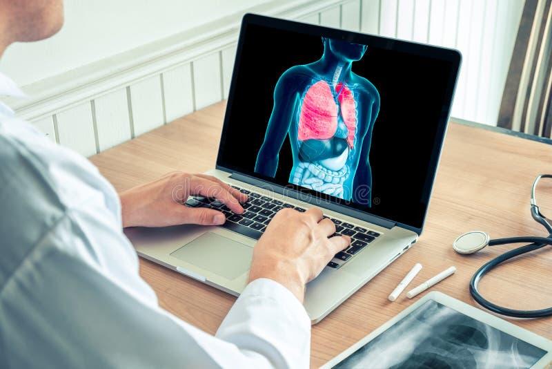 医生与肺一起使用X-射线在膝上型计算机的 肺和香烟预防的巨蟹星座 库存照片