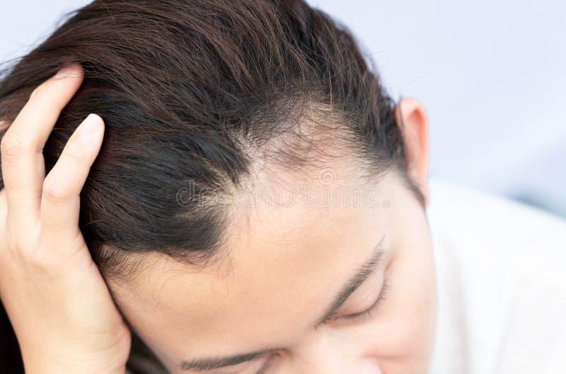 医疗保健香波和美容品概念的妇女严肃的掉头发问题 免版税图库摄影
