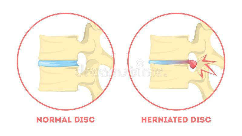 圆盘退化 人的解剖学 脊椎问题 健康 向量例证