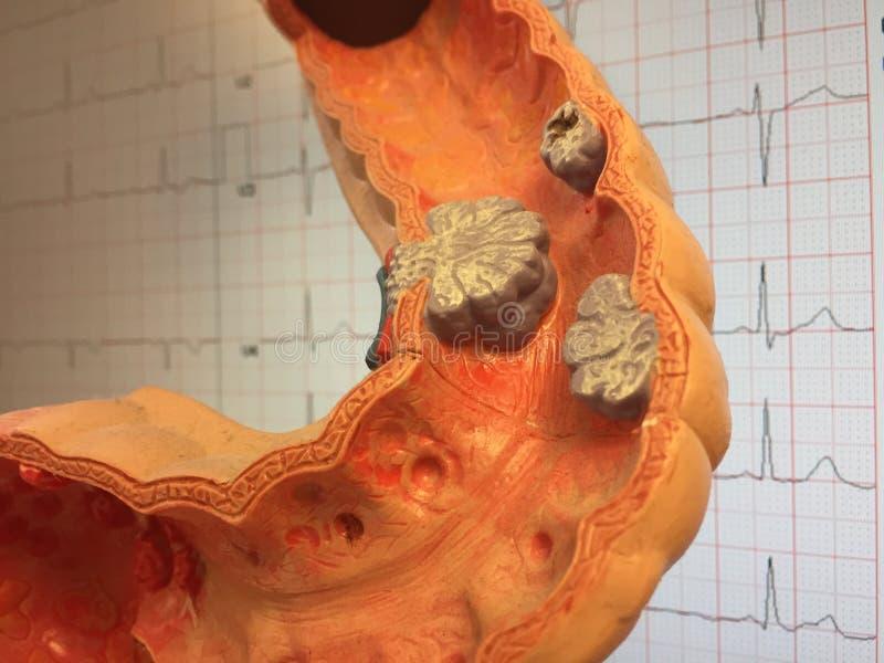 冒号老解剖模型与不同的疾病的例子的 免版税库存图片