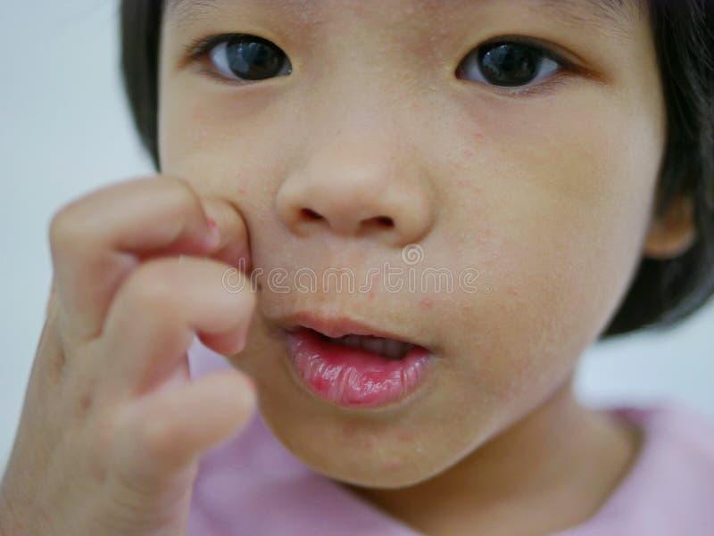 关闭痒一点亚裔的女婴抓在她的过敏面孔,它得到了使她的脸皮的疹干燥和 免版税图库摄影