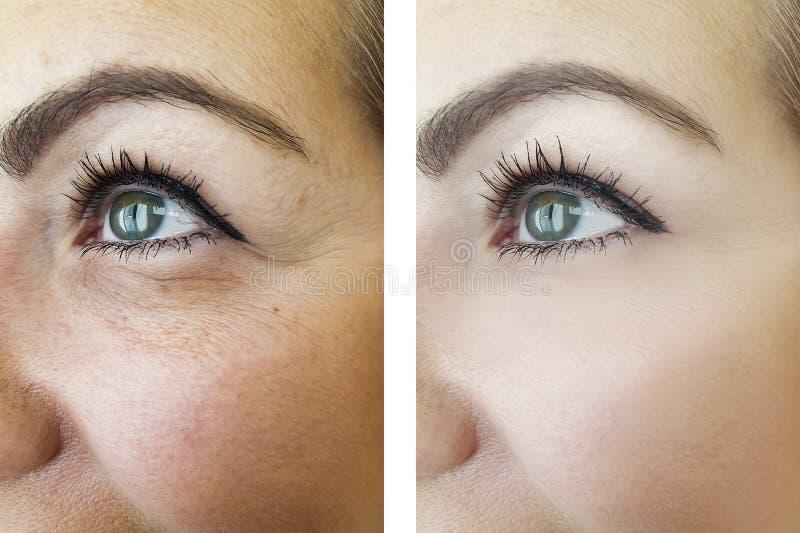 前后妇女皱痕的眼睛,膨胀的做法 免版税库存照片