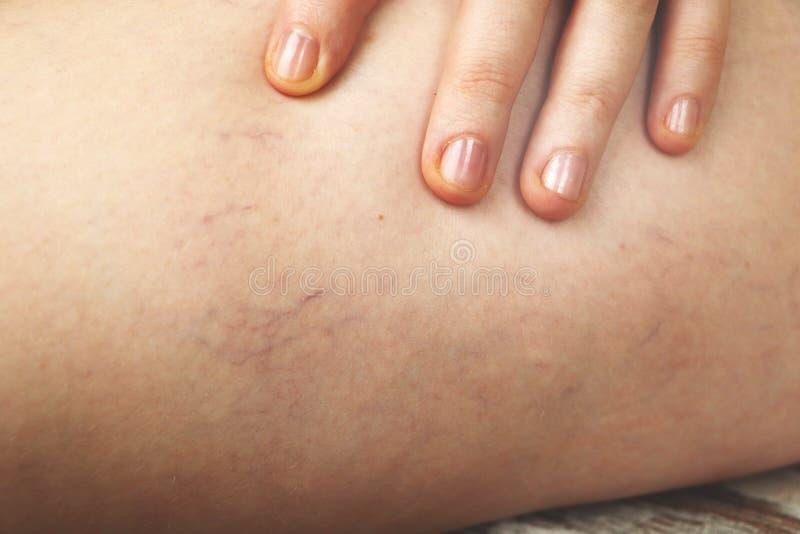 Åderbråcks åder och hårfina åder i benen Medicinsk kontroll och behandling fotografering för bildbyråer