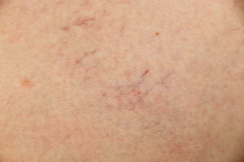 Åderbråcks åder och hårfina åder i benen Medicinsk kontroll och behandling royaltyfria bilder
