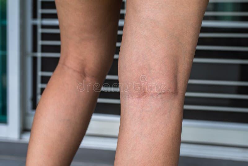 Åderbråcks åder på kvinnabenet, normala åder nära hudlagret sväller ut, och blod ackumuleras för att se blodigt blått eller mörke arkivbild