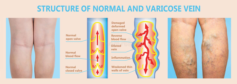 Åderbråcks åder på kvinnliga ben för en pensionär Strukturen av normala och åderbråcks åder vektor illustrationer
