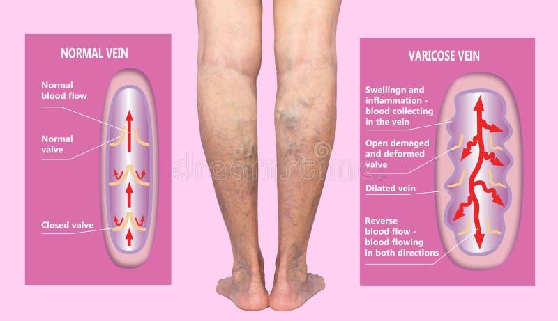 Åderbråcks åder på kvinnliga ben för en pensionär Strukturen av normala och åderbråcks åder royaltyfri illustrationer