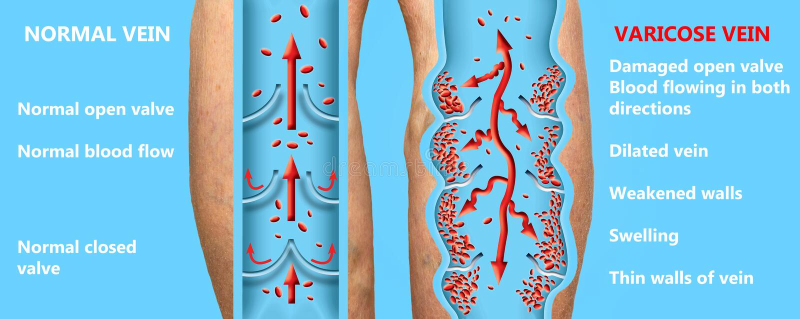 Åderbråcks åder på kvinnliga ben för en pensionär Strukturen av normala och åderbråcks åder stock illustrationer